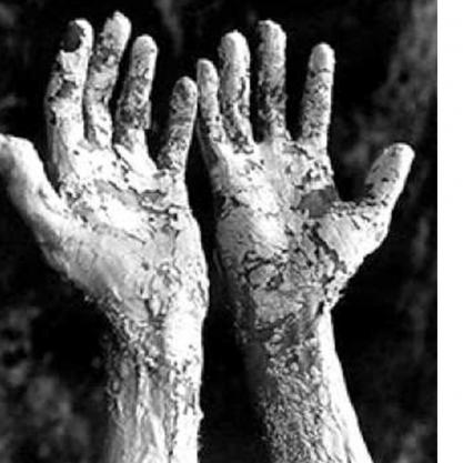 ריפוי מחלות עור